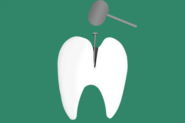 一颗牙齿背后的千亿生意